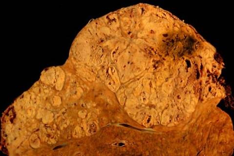Imagine  a ficatului unei persoane care a prezentat carcinom pe fondul unei ciroze, realizata la autopsie.